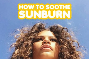 How To Soothe Sunburn